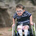 Spina bifida nedir?